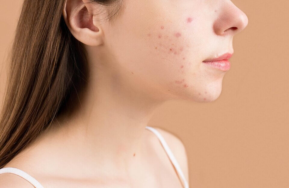 淡化斑點的關鍵:長痘痘、粉刺別亂擠