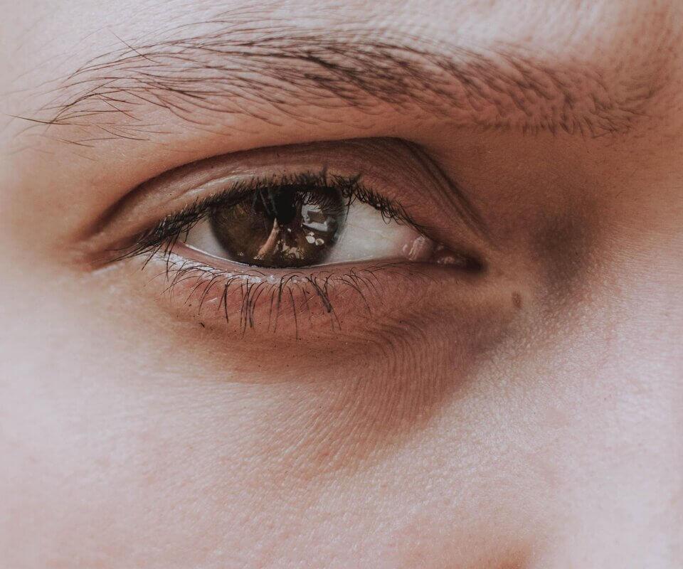 肌膚乾燥缺水讓眼周肌膚變得不平整,就容易出現眼下細紋或魚尾紋
