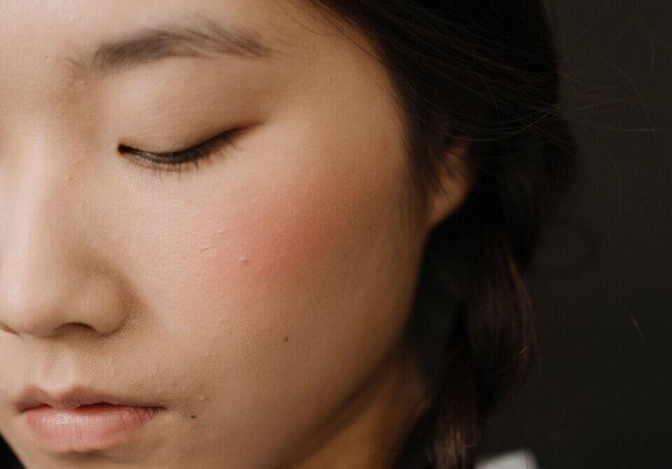 T 字部位不油,臉頰明顯乾燥、緊繃或脫屑,通常是乾性肌膚